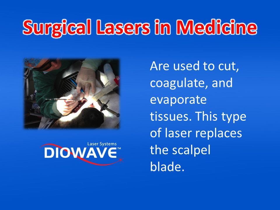 Surgical Lasers in Medicine