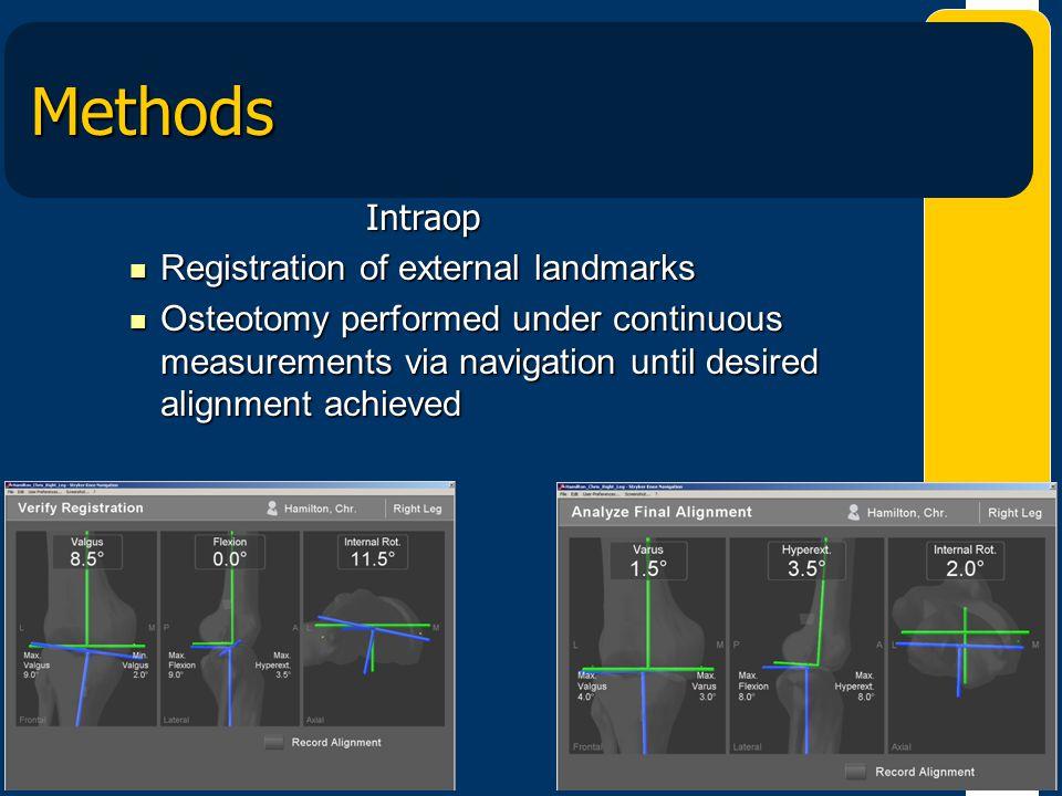 Methods Intraop Registration of external landmarks