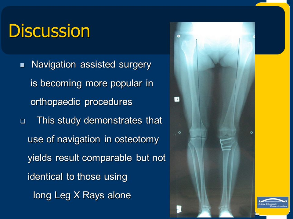 Discussion Navigation assisted surgery is becoming more popular in