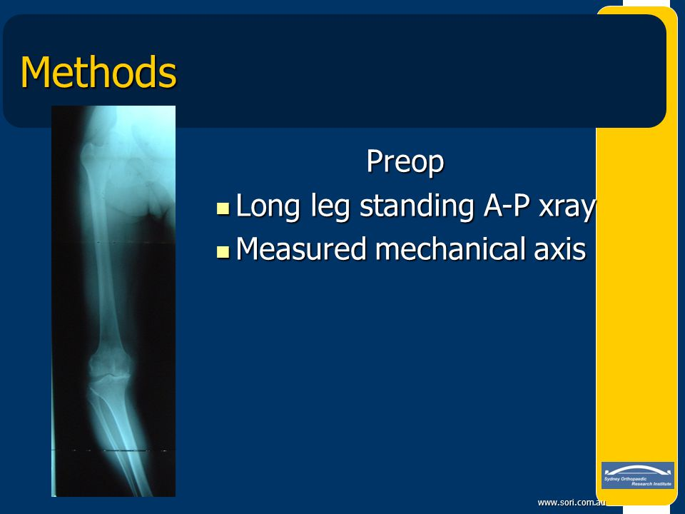 Methods Preop Long leg standing A-P xray Measured mechanical axis