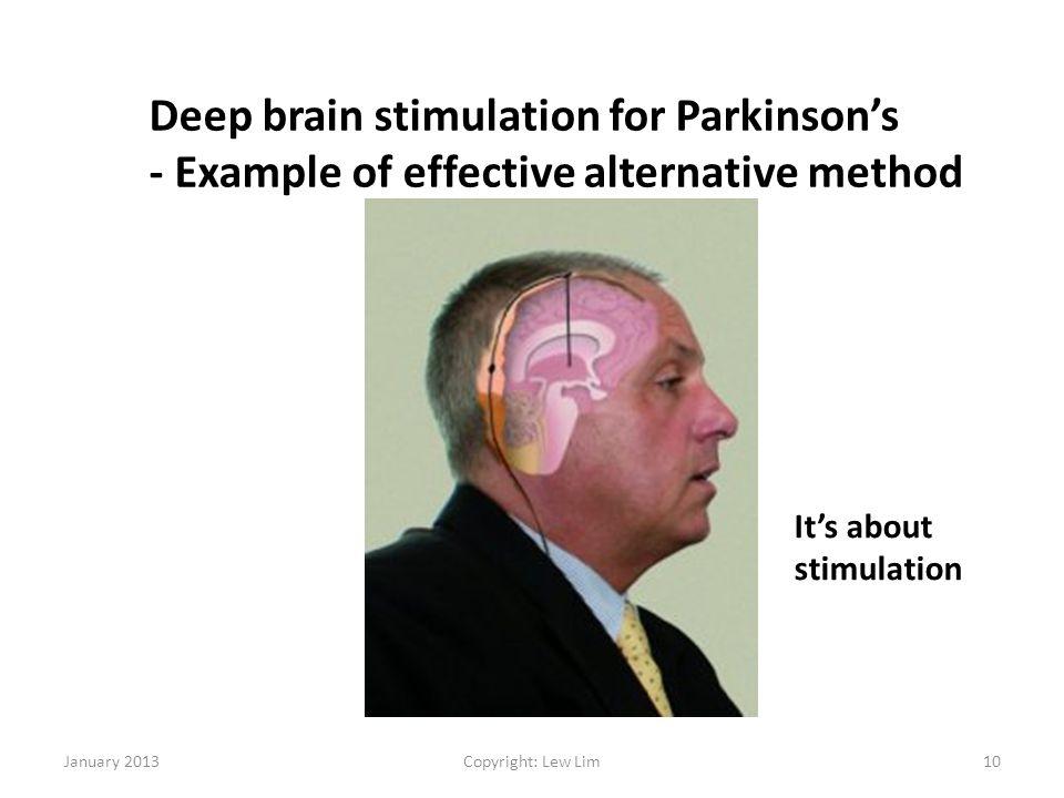 Deep brain stimulation for Parkinson's