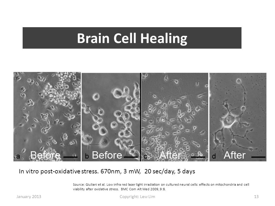 Brain Cell Healing In vitro post-oxidative stress. 670nm, 3 mW, 20 sec/day, 5 days.