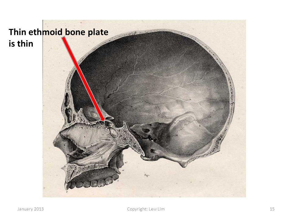 Thin ethmoid bone plate is thin