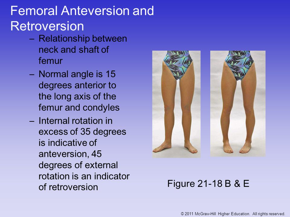 Femoral Anteversion and Retroversion