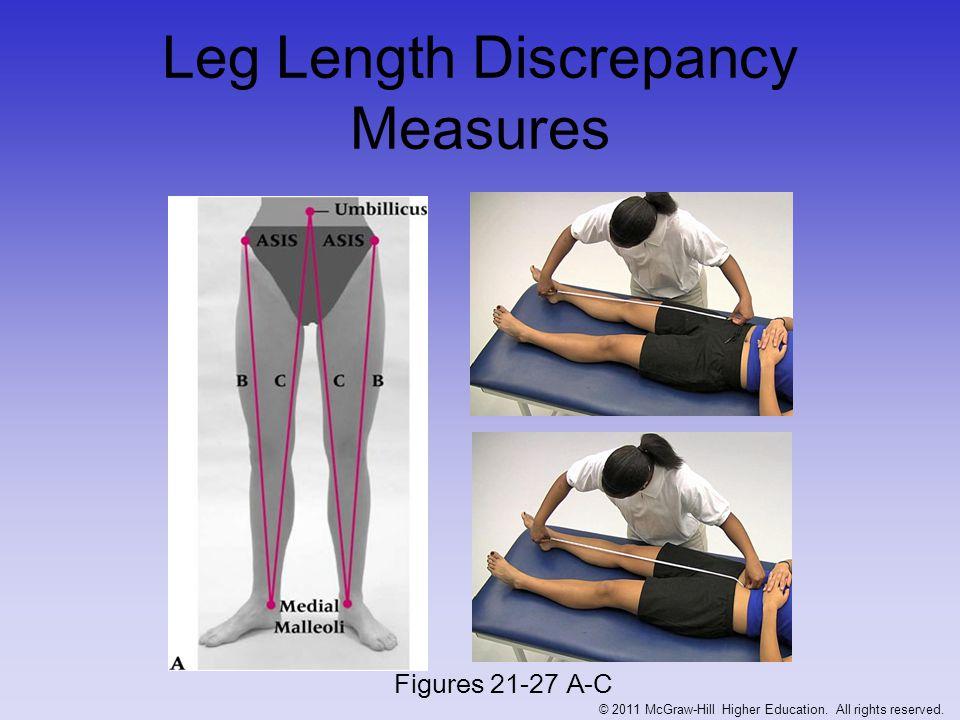 Leg Length Discrepancy Measures