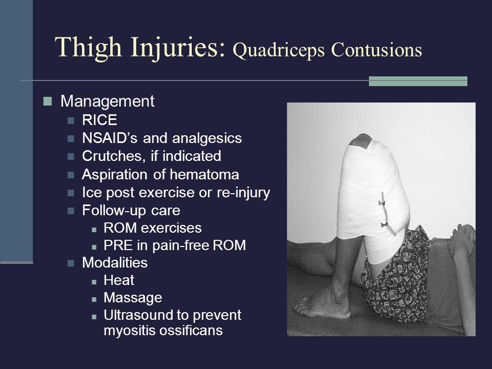 Thigh Injuries: Quadriceps Contusions