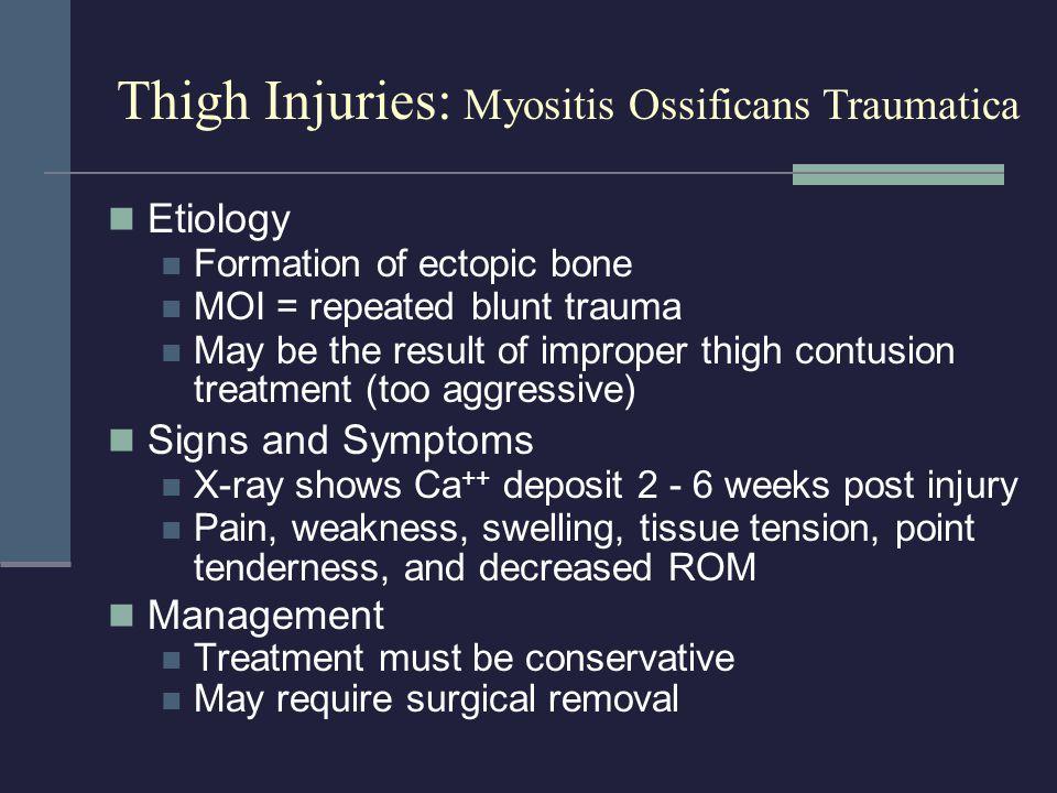 Thigh Injuries: Myositis Ossificans Traumatica