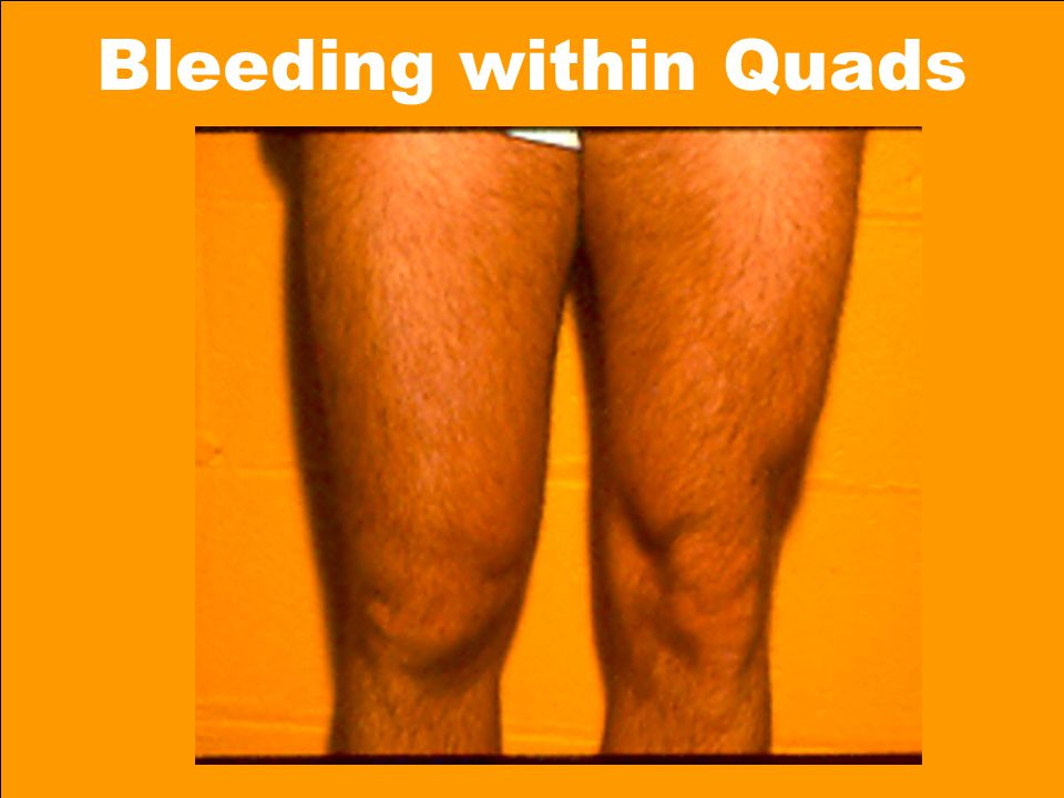 Bleeding within Quads