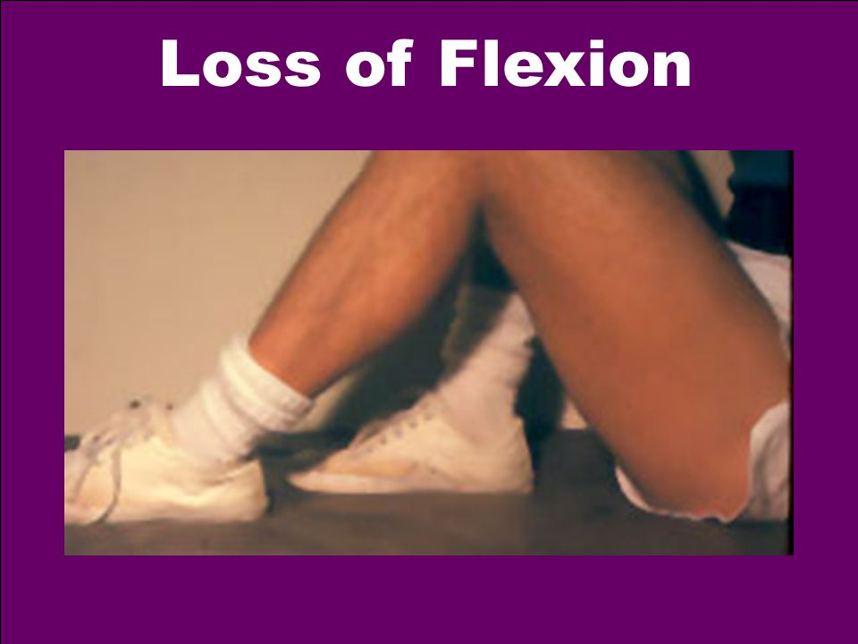 Loss of Flexion