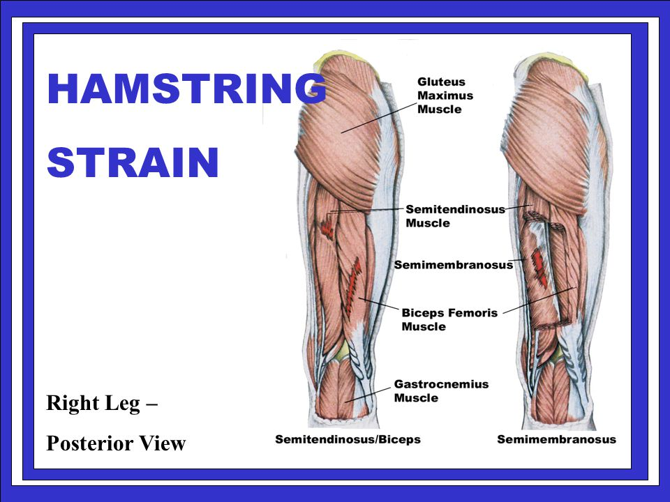 HAMSTRING STRAIN Right Leg – Posterior View