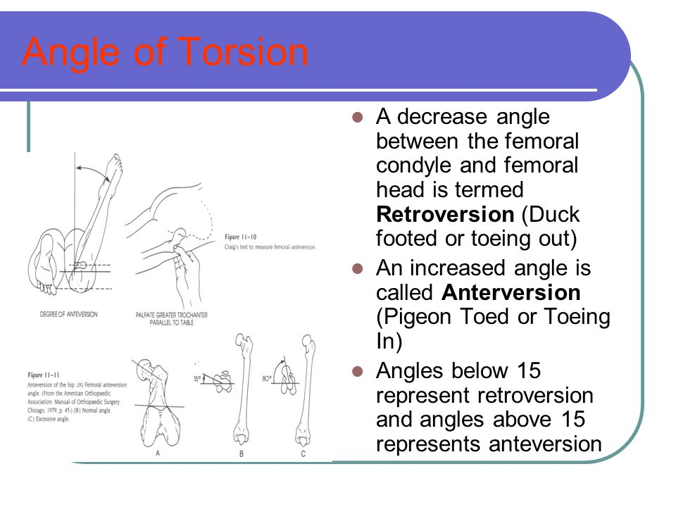 Angle of Torsion A decrease angle between the femoral condyle and femoral head is termed Retroversion (Duck footed or toeing out)