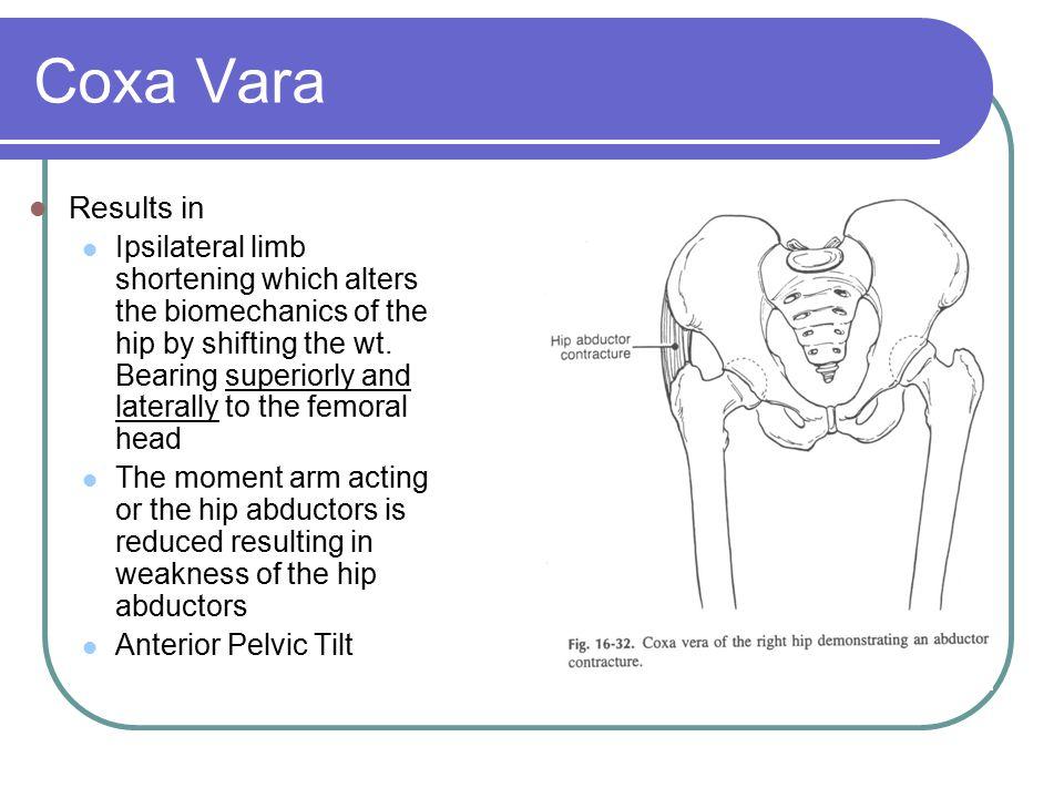 Coxa Vara Results in.