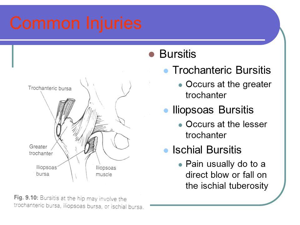 Common Injuries Bursitis Trochanteric Bursitis Iliopsoas Bursitis