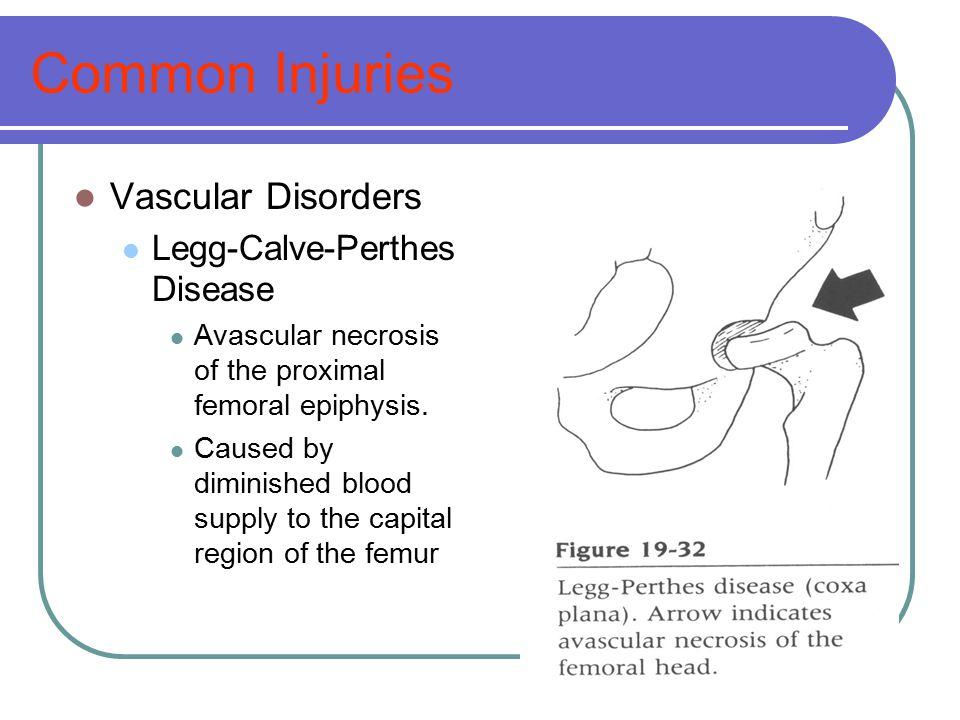 Common Injuries Vascular Disorders Legg-Calve-Perthes Disease