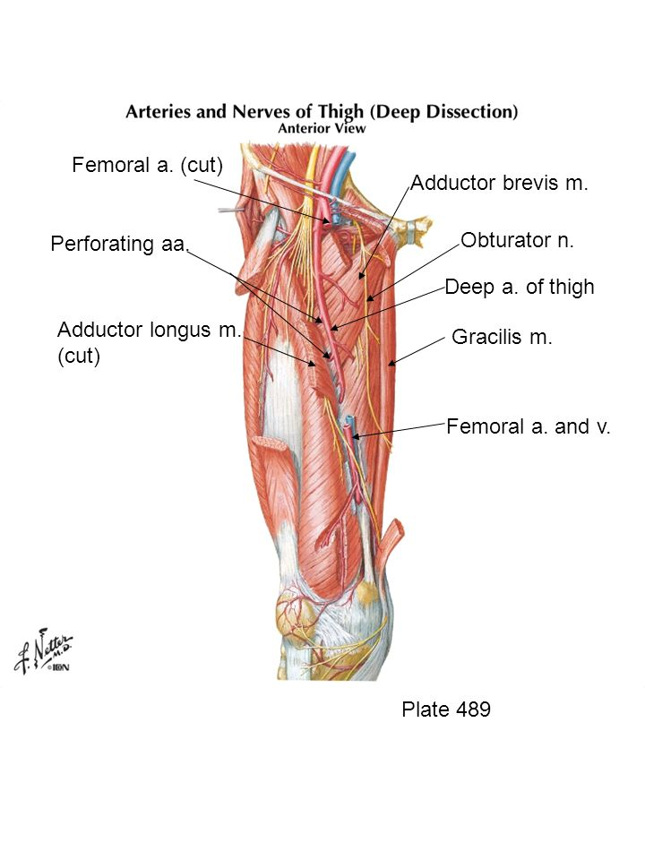 Femoral a. (cut) Adductor brevis m. Obturator n. Perforating aa.