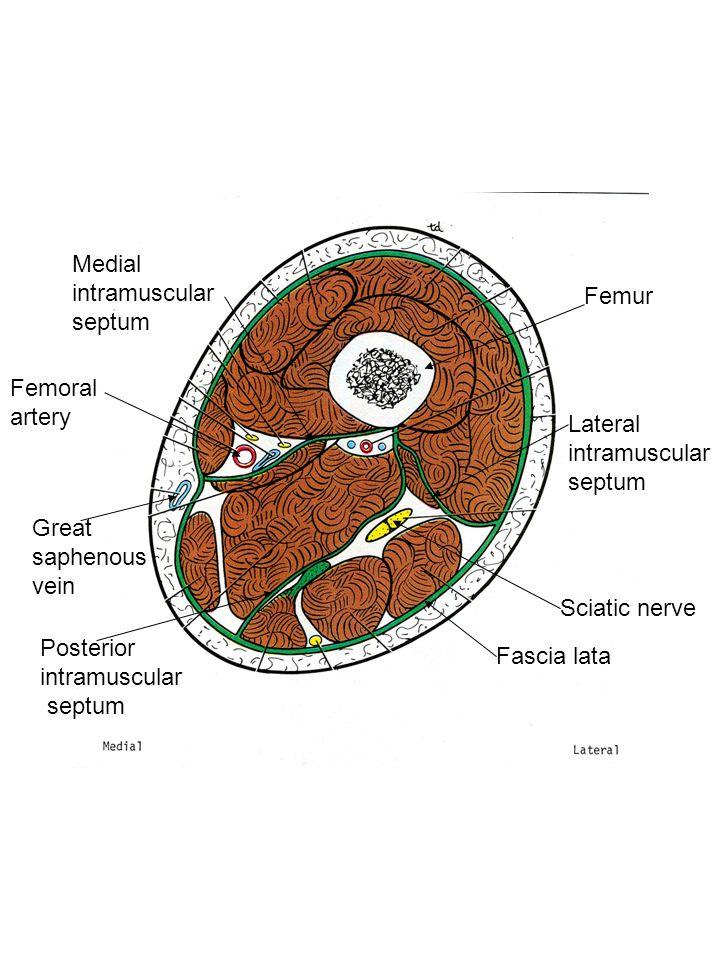 Medial intramuscular septum Femur Femoral artery Lateral intramuscular