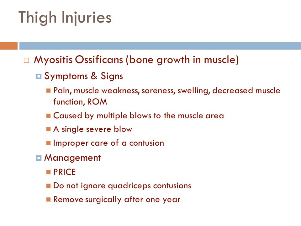 Thigh Injuries Myositis Ossificans (bone growth in muscle)