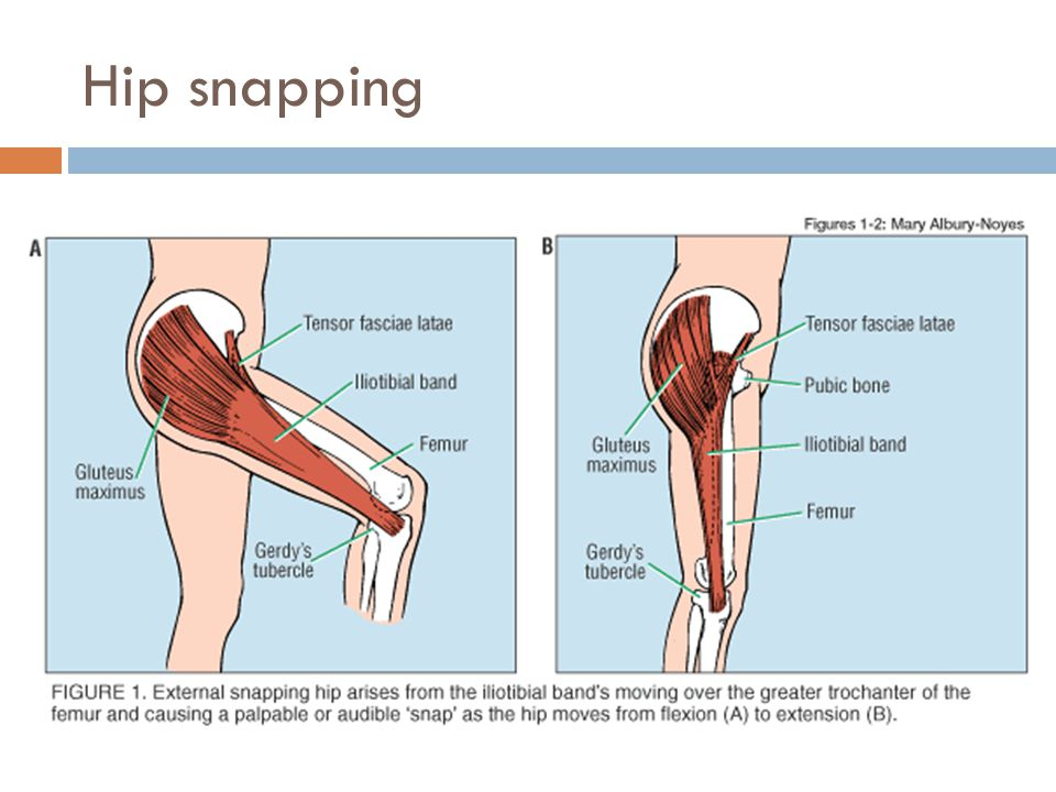 Hip snapping
