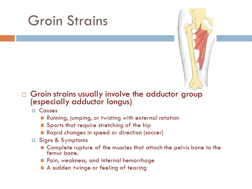 Groin Strains Groin strains usually involve the adductor group (especially adductor longus) Causes.