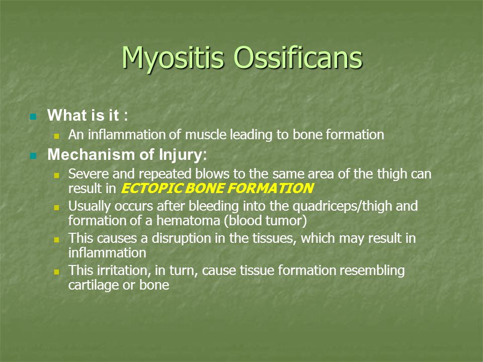Myositis Ossificans What is it : Mechanism of Injury: