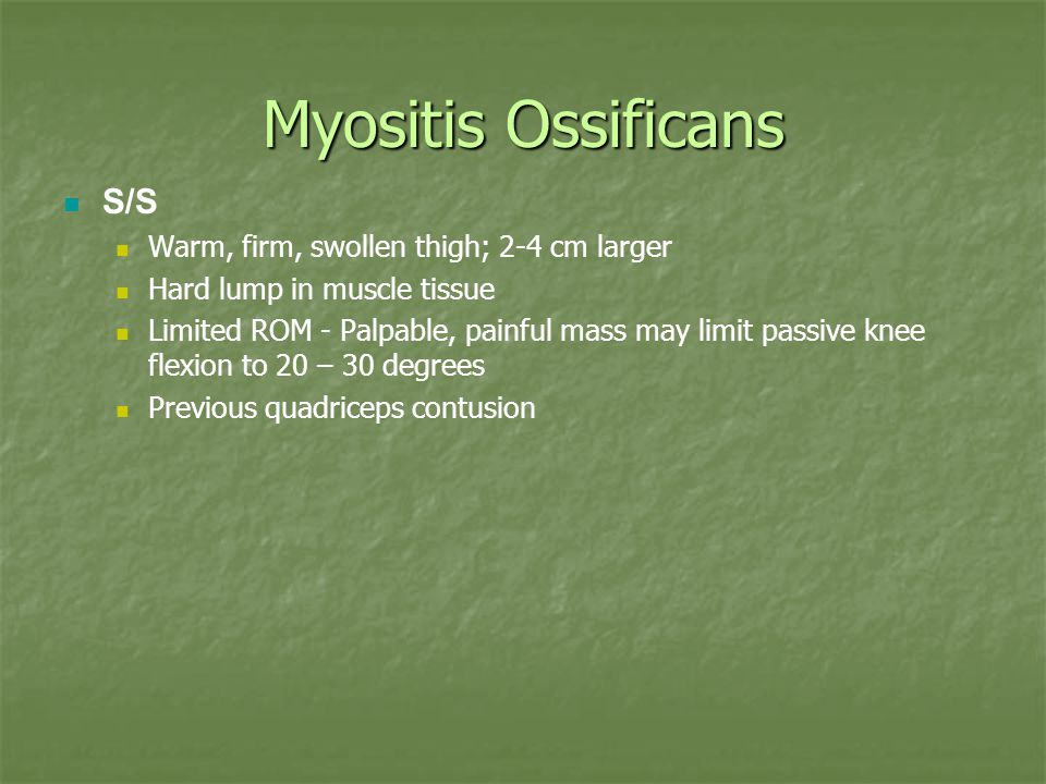 Myositis Ossificans S/S Warm, firm, swollen thigh; 2-4 cm larger