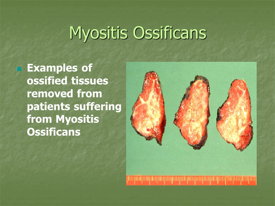 Myositis Ossificans Examples of ossified tissues removed from patients suffering from Myositis Ossificans.