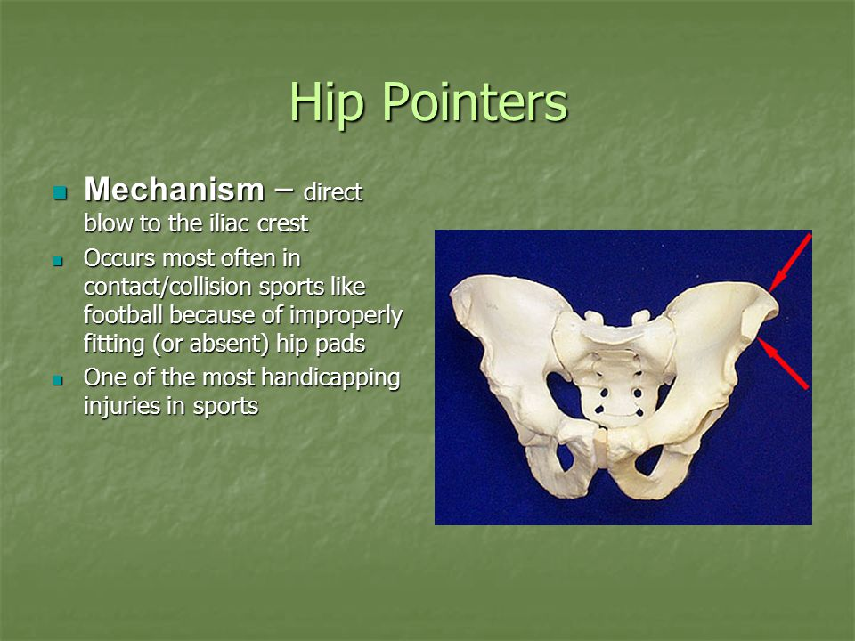 Hip Pointers Mechanism – direct blow to the iliac crest