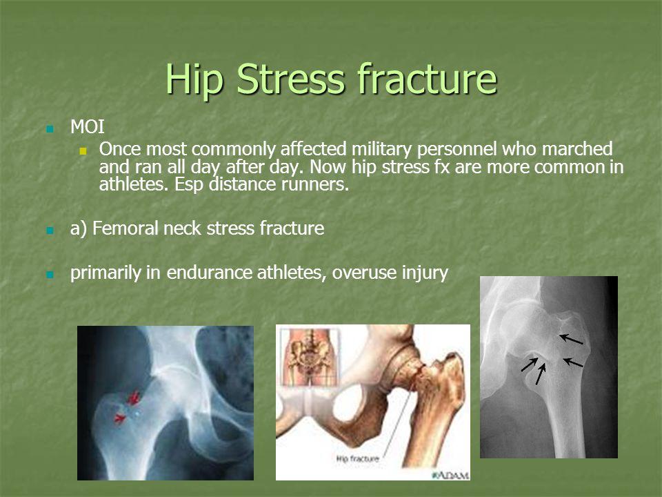 Hip Stress fracture MOI