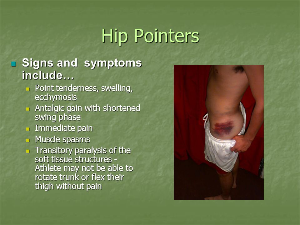 Hip Pointers Signs and symptoms include…