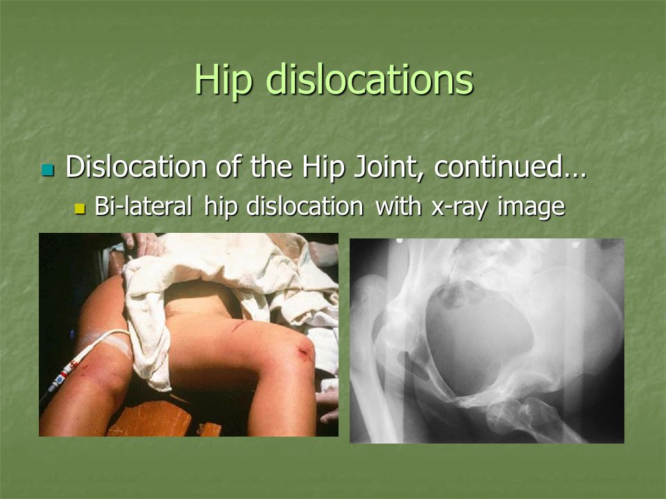 Hip dislocations Dislocation of the Hip Joint, continued…