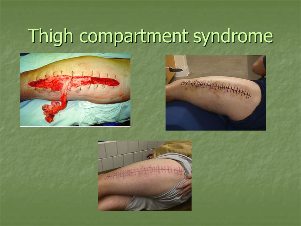 Thigh compartment syndrome