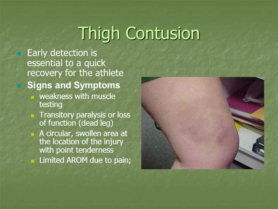 Thigh Contusion Early detection is essential to a quick recovery for the athlete. Signs and Symptoms.