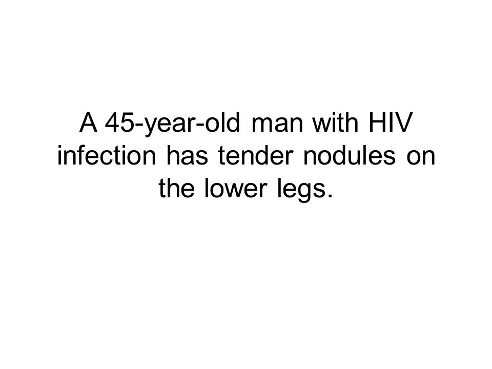 A 45-year-old man with HIV infection has tender nodules on the lower legs.