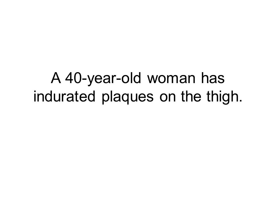 A 40-year-old woman has indurated plaques on the thigh.