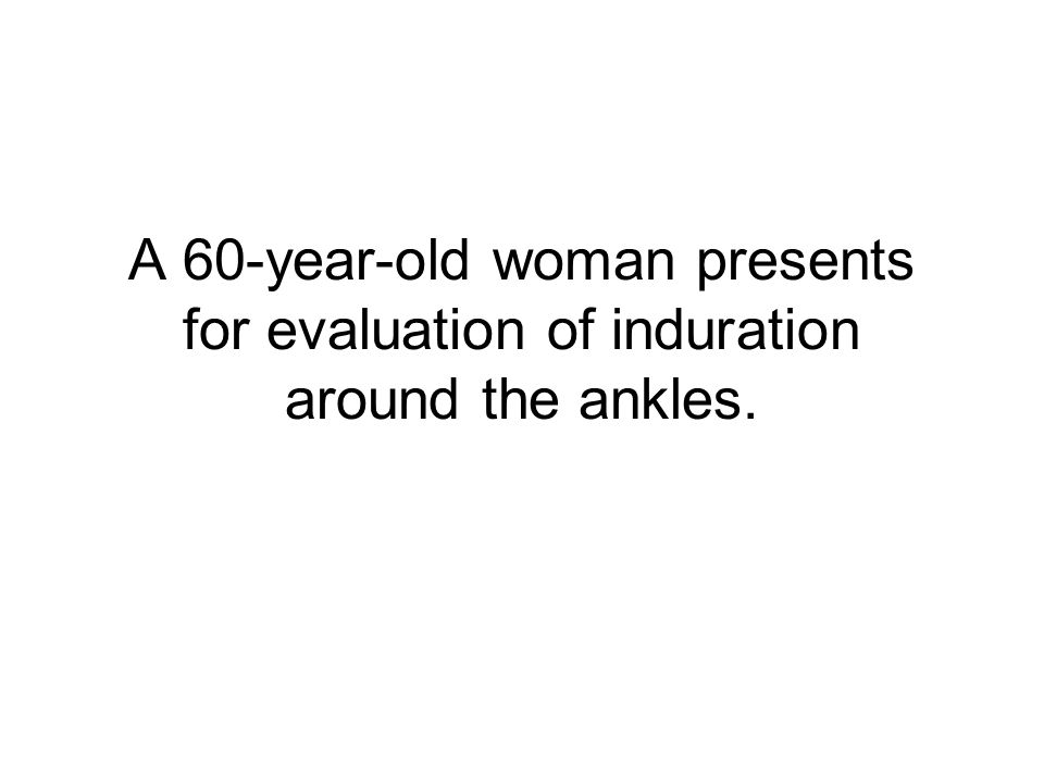 A 60-year-old woman presents for evaluation of induration around the ankles.