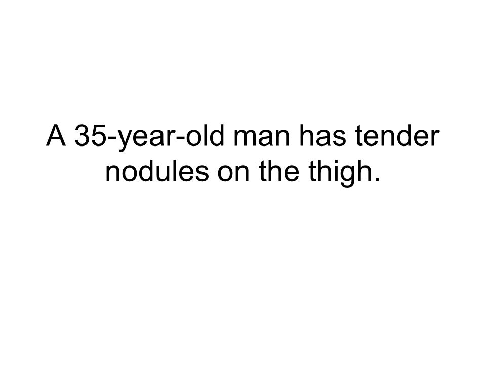 A 35-year-old man has tender nodules on the thigh.