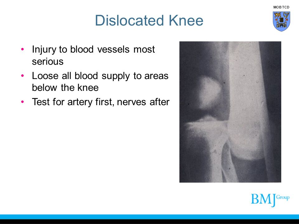 Dislocated Knee Injury to blood vessels most serious