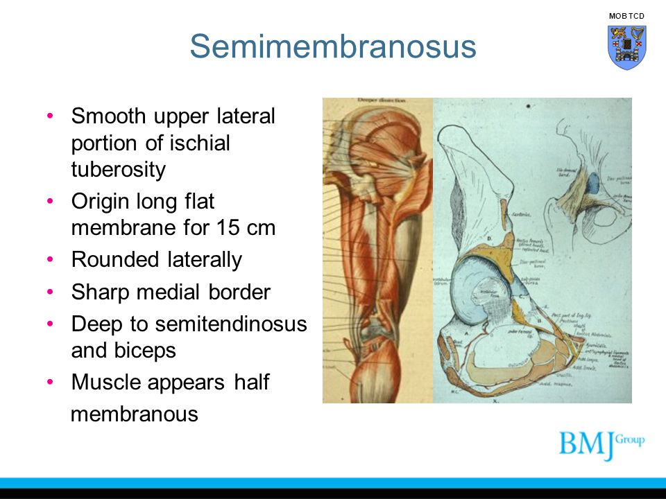 Semimembranosus Smooth upper lateral portion of ischial tuberosity