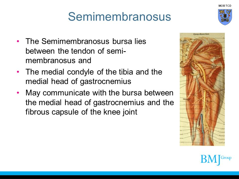 Semimembranosus MOB TCD. The Semimembranosus bursa lies between the tendon of semi-membranosus and.