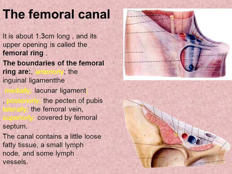 The femoral canal It is about 1.3cm long , and its upper opening is called the femoral ring .