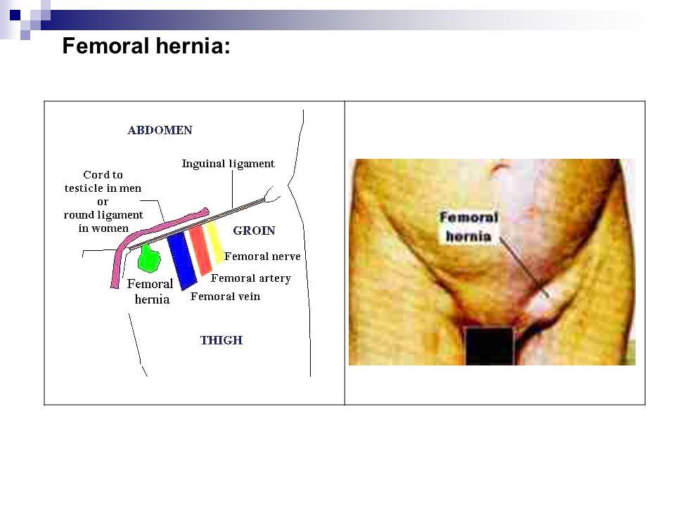 Femoral hernia: