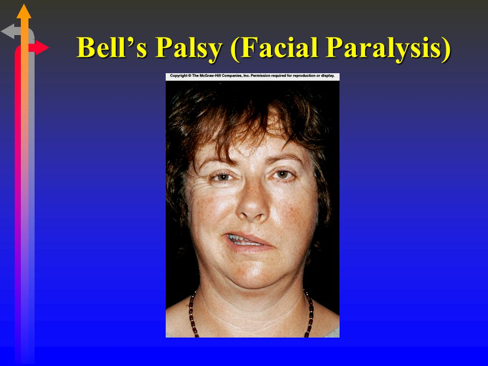 Bell's Palsy (Facial Paralysis)