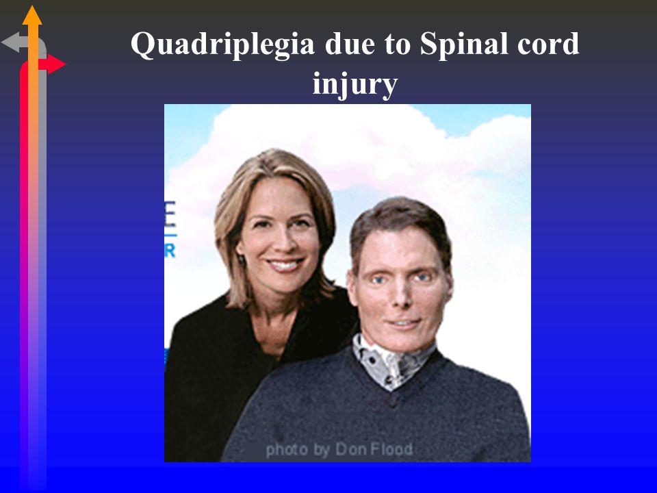 Quadriplegia due to Spinal cord injury