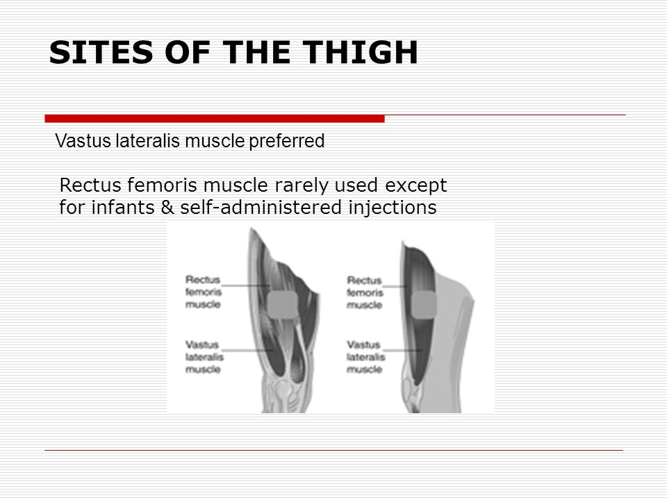 SITES OF THE THIGH Rectus femoris muscle rarely used except