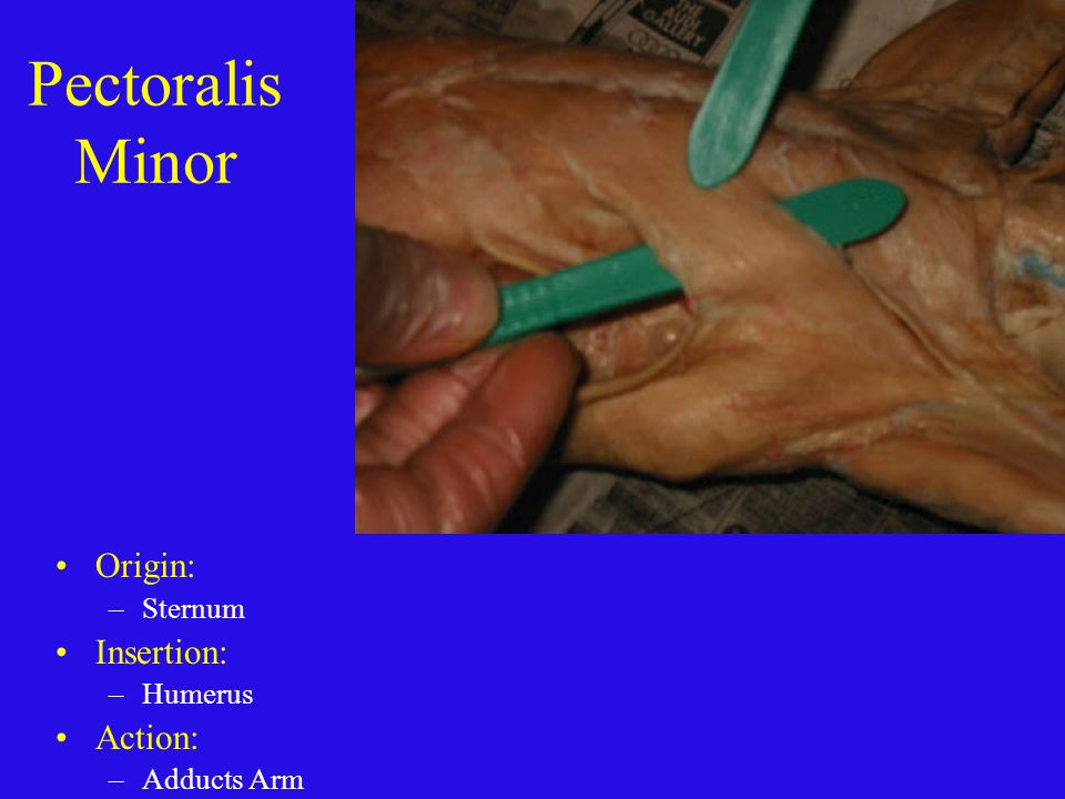 Pectoralis Minor Origin: Insertion: Action: Sternum Humerus