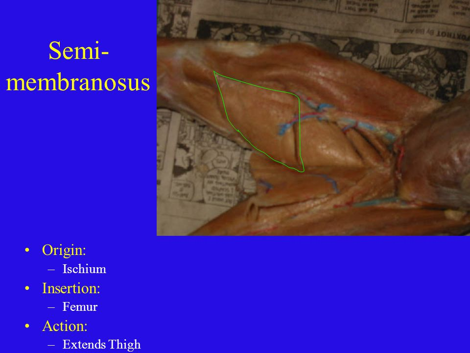 Semi-membranosus Origin: Insertion: Action: Ischium Femur