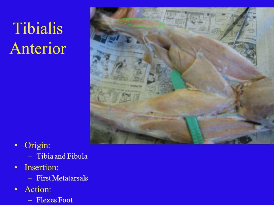 Tibialis Anterior Origin: Insertion: Action: Tibia and Fibula
