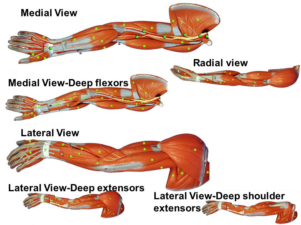Medial View Radial view. Medial View-Deep flexors.