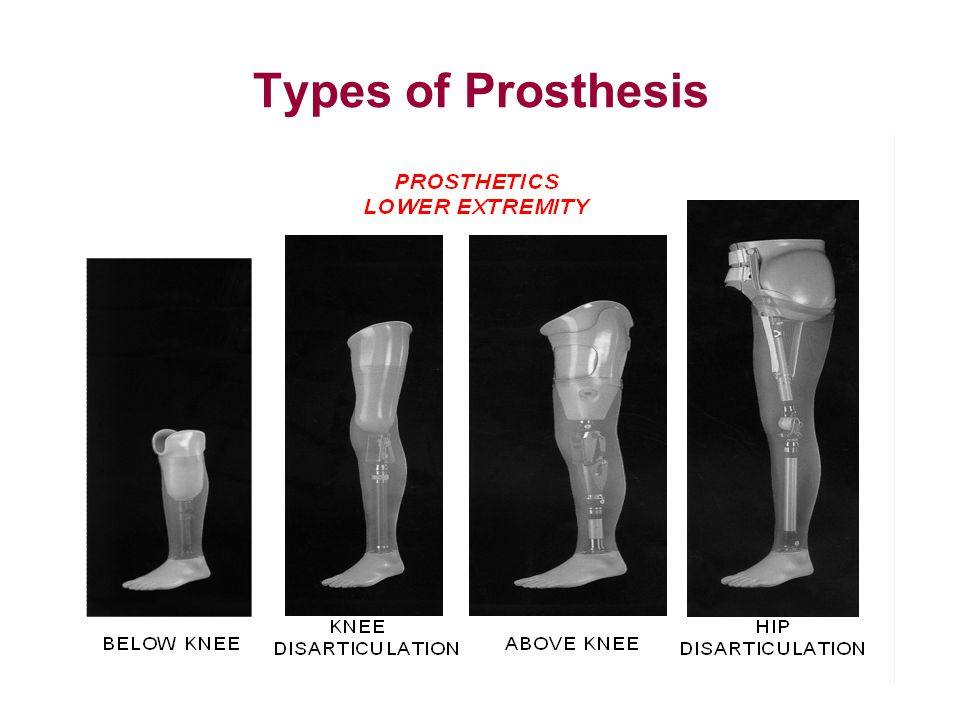 Types of Prosthesis