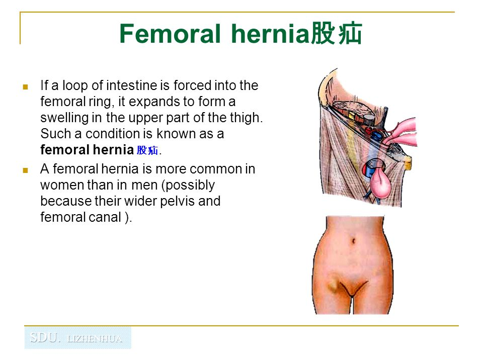 Femoral hernia股疝